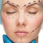 Пластическая хирургия – сколько это стоит?